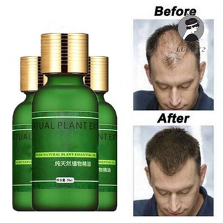 Review Hair Growth Essence Oil Supplement Fuller Thicker Regrowth Treatment for Hair Loss Care 30ml