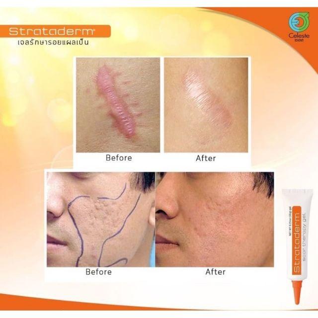 💖ส่งฟรี ของแท้ ล็อตใหม่ล่าสุด หมดอายุ 2024💖 Strataderm Scar Therapy Gel  5g ซิลิโคนเจล แผลเป็น รอยดำ แดง รอยสิว คีลอยด์   Shopee Thailand