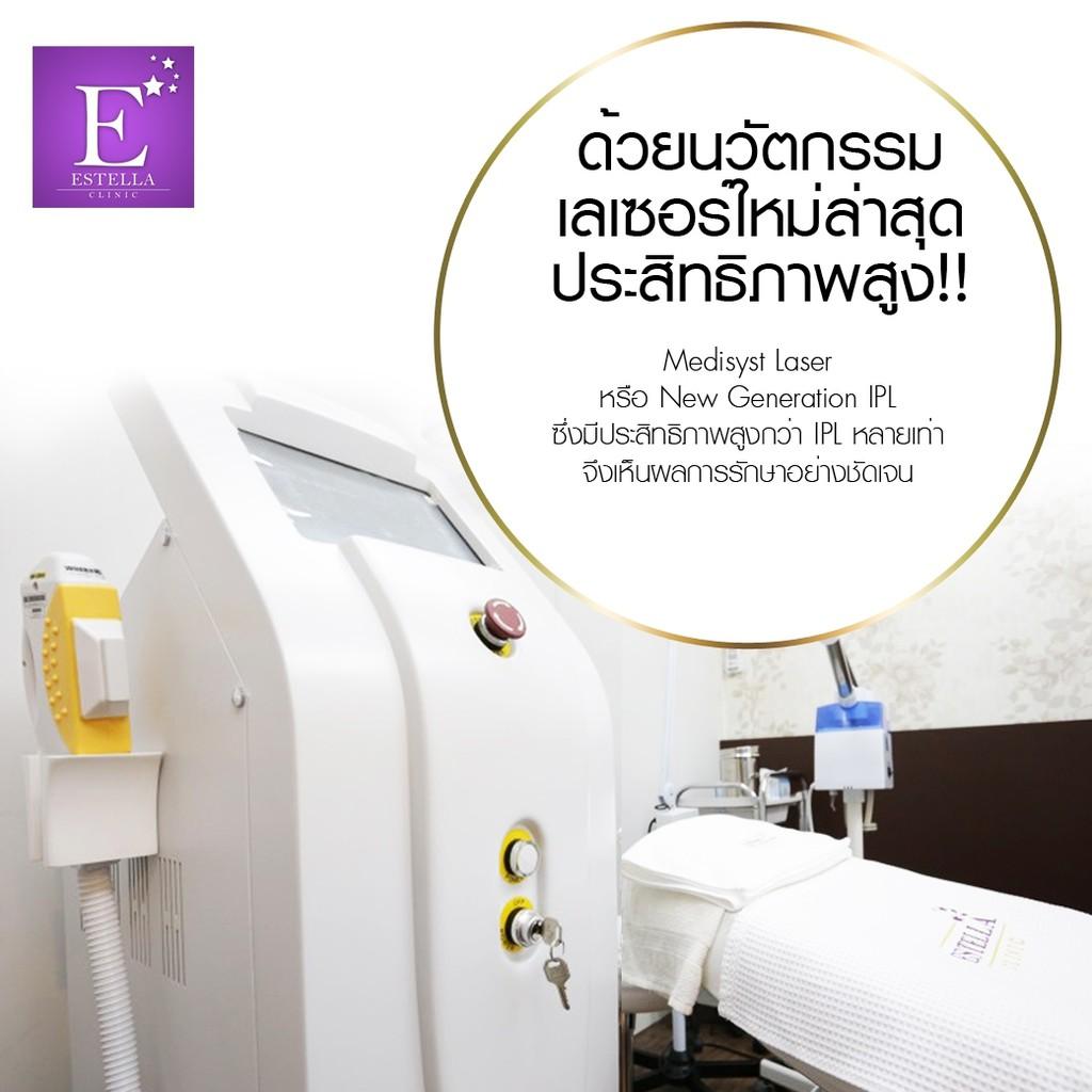 [E Voucher] Estella Clinic เลเซอร์กำจัดขนรักแร้ คอร์ส ( 6 ครั้ง ฟรี 6 ครั้ง )