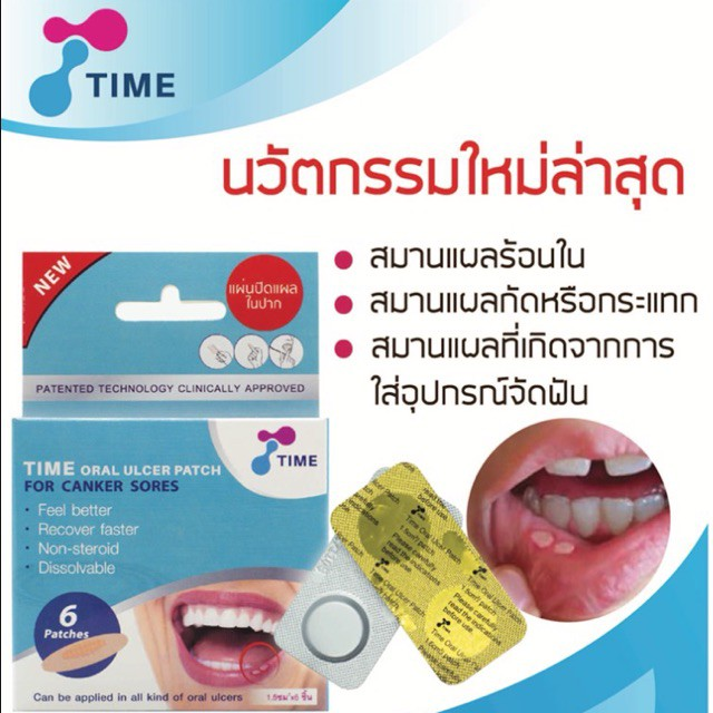 Image result for time oral ulcer patch