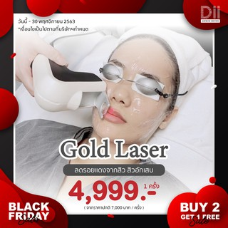 Black Friday : Gold Laser