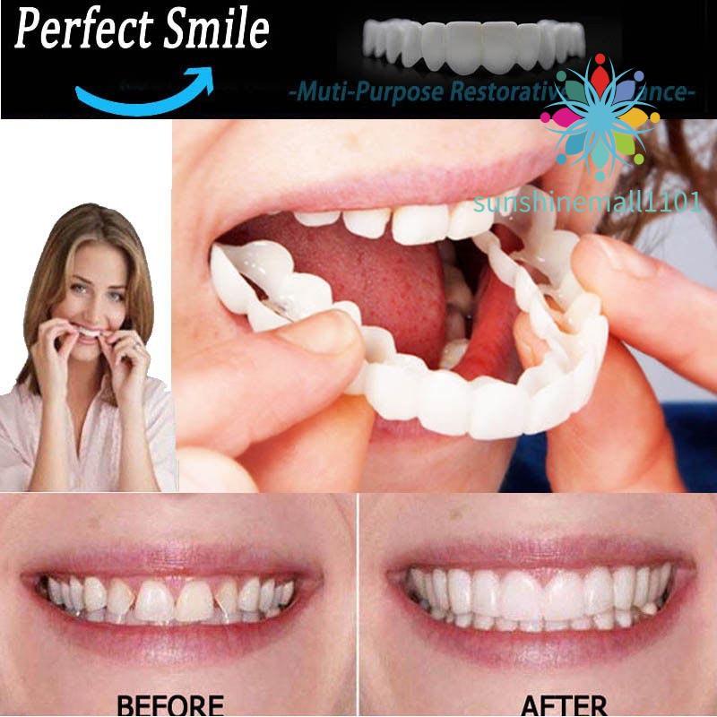 ฟันปลอมสำหรับใส่ฟันปลอม